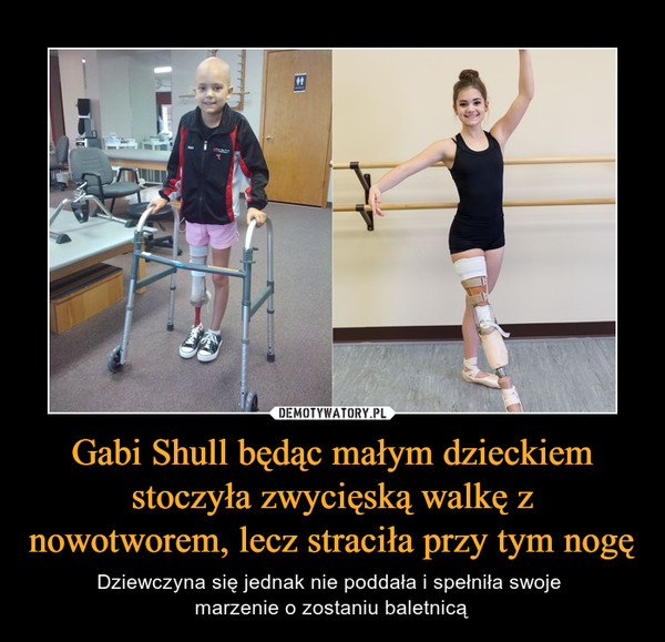 Gabi Shull będąc małym dzieckiem stoczyła zwycięską walkę z nowotworem, lecz straciła przy tym nogę – Dziewczyna się jednak nie poddała i spełniła swoje marzenie o zostaniu baletnicą