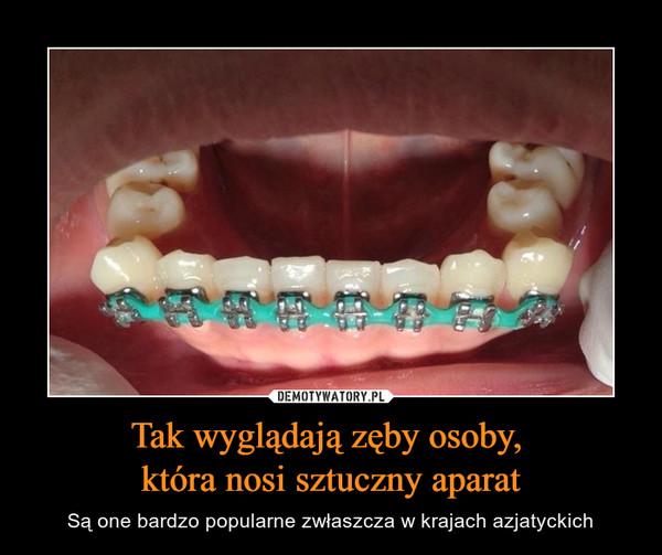 Tak wyglądają zęby osoby, która nosi sztuczny aparat – Są one bardzo popularne zwłaszcza w krajach azjatyckich