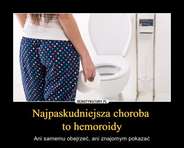 Najpaskudniejsza choroba to hemoroidy – Ani samemu obejrzeć, ani znajomym pokazać