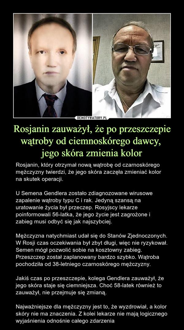Rosjanin zauważył, że po przeszczepie wątroby od ciemnoskórego dawcy, jego skóra zmienia kolor – Rosjanin, który otrzymał nową wątrobę od czarnoskórego mężczyzny twierdzi, że jego skóra zaczęła zmieniać kolor na skutek operacji.U Semena Gendlera zostało zdiagnozowane wirusowe zapalenie wątroby typu C i rak. Jedyną szansą na uratowanie życia był przeczep. Rosyjscy lekarze poinformowali 56-latka, że jego życie jest zagrożone i zabieg musi odbyć się jak najszybciej.Mężczyzna natychmiast udał się do Stanów Zjednoczonych. W Rosji czas oczekiwania był zbyt długi, więc nie ryzykował. Semen mógł pozwolić sobie na kosztowny zabieg. Przeszczep został zaplanowany bardzo szybko. Wątroba pochodziła od 38-letniego czarnoskórego mężczyzny.Jakiś czas po przeszczepie, kolega Gendlera zauważył, że jego skóra staje się ciemniejsza. Choć 58-latek również to zauważył, nie przejmuje się zmianą.Najważniejsze dla mężczyzny jest to, że wyzdrowiał, a kolor skóry nie ma znaczenia. Z kolei lekarze nie mają logicznego wyjaśnienia odnośnie całego zdarzenia