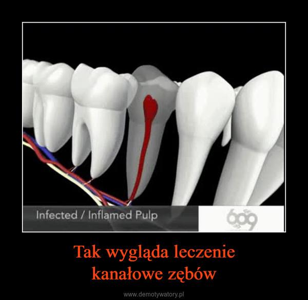 Tak wygląda leczeniekanałowe zębów –