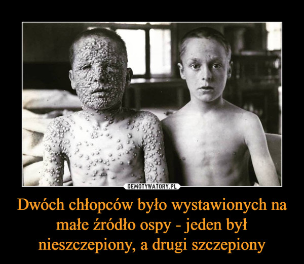 Dwóch chłopców było wystawionych na małe źródło ospy - jeden był nieszczepiony, a drugi szczepiony –