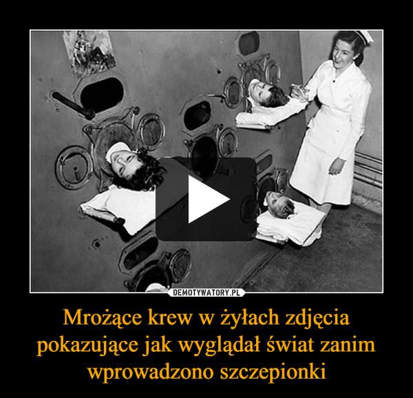 Mrożące krew w żyłach zdjęcia pokazujące jak wyglądał świat zanim wprowadzono szczepionki –