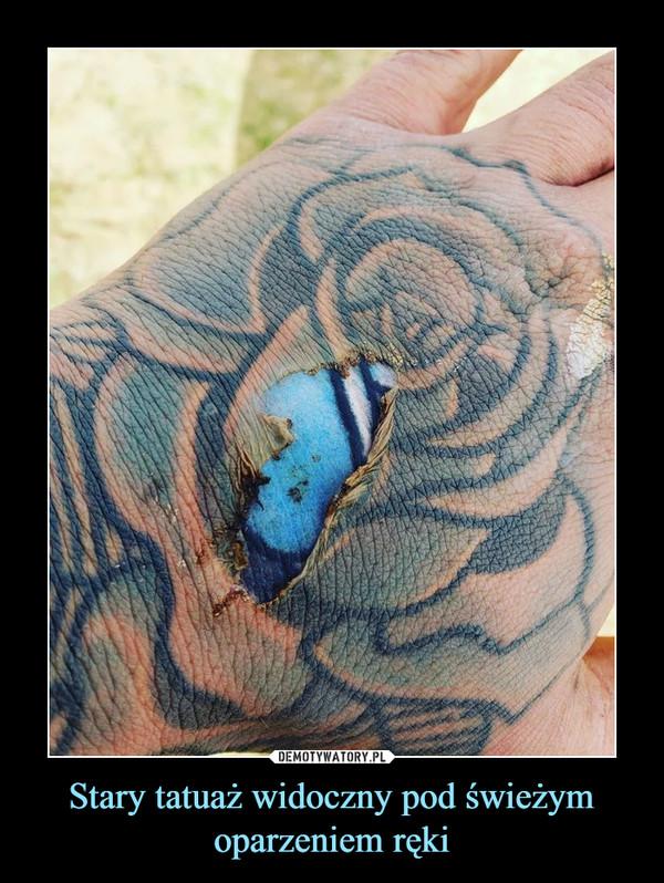 Stary tatuaż widoczny pod świeżym oparzeniem ręki –