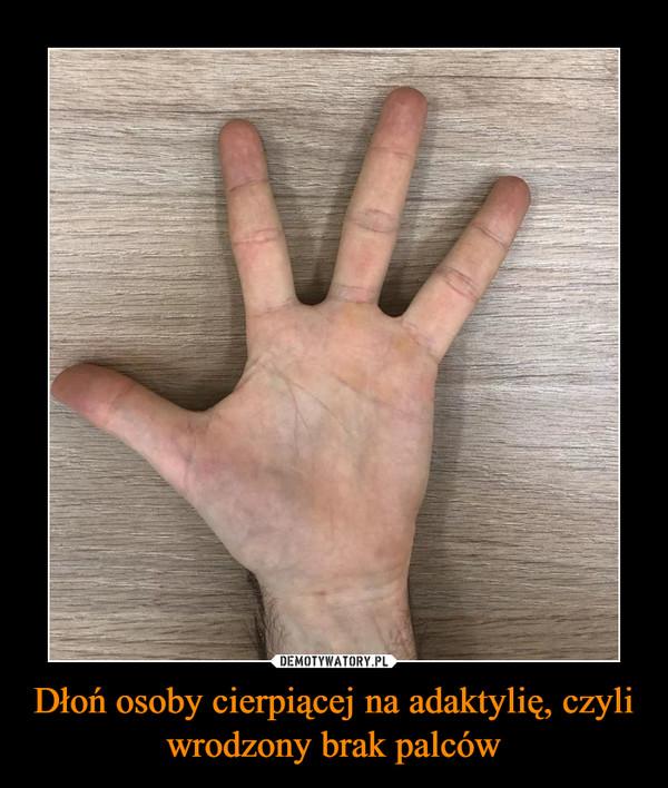 Dłoń osoby cierpiącej na adaktylię, czyli wrodzony brak palców –