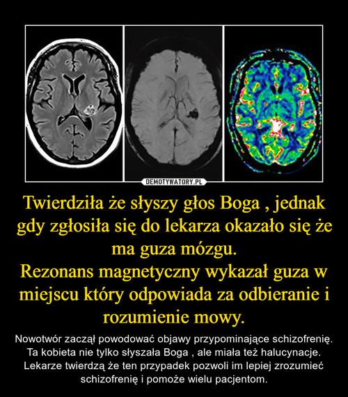 Twierdziła że słyszy głos Boga , jednak gdy zgłosiła się do lekarza okazało się że ma guza mózgu. Rezonans magnetyczny wykazał guza w miejscu który odpowiada za odbieranie i rozumienie mowy.