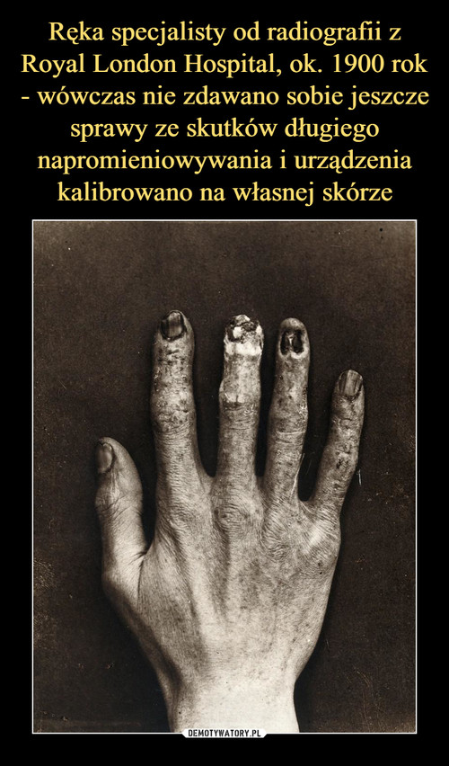 Ręka specjalisty od radiografii z Royal London Hospital, ok. 1900 rok - wówczas nie zdawano sobie jeszcze sprawy ze skutków długiego napromieniowywania i urządzenia kalibrowano na własnej skórze