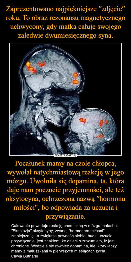 """Zaprezentowano najpiękniejsze ′′zdjęcie′′ roku. To obraz rezonansu magnetycznego uchwycony, gdy matka całuje swojego zaledwie dwumiesięcznego syna. Pocałunek mamy na czole chłopca, wywołał natychmiastową reakcję w jego mózgu. Uwolniła się dopamina, ta, która daje nam poczucie przyjemności, ale też oksytocyna, ochrzczona nazwą ′′hormonu miłości"""", bo odpowiada za uczucia i przywiązanie."""